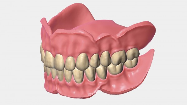 Abo exocad Full Denture Modul (Totalprothetikmodul)
