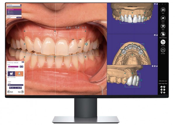 Abo exocad ChairsideCAD In-CAD smile design