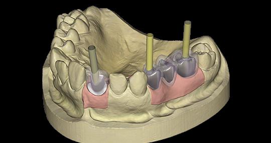 exocad Module Implant
