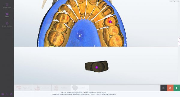 smart optics dental scan Software-Update