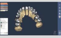 Exocad DentalCAD Konfigurator (Flex License, Miete) - Ohne Support