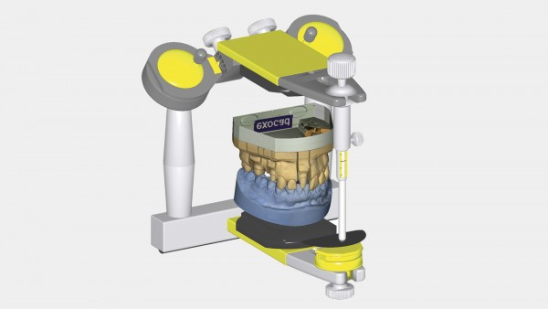 exocad Virtueller Artikulator Modul (Virtual Articulator)