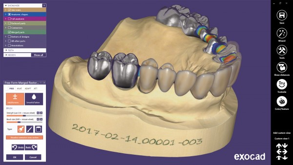 Abo exocad-DentalCAD-Software-Basis-Modul Update